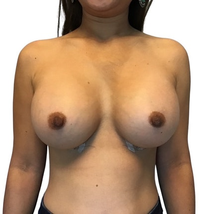 Breast Augmentation Gallery - Patient 13948299 - Image 2