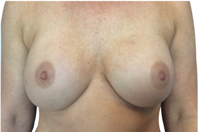 Breast Augmentation Gallery - Patient 13948300 - Image 1