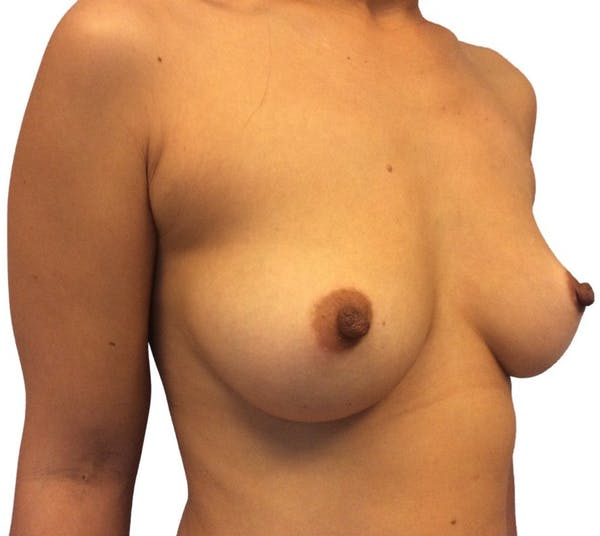 Breast Augmentation Gallery - Patient 13948299 - Image 3