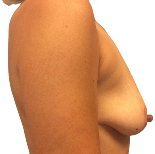 Breast Augmentation Gallery - Patient 13948298 - Image 3