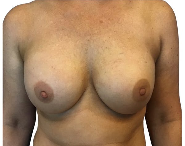 Breast Augmentation Gallery - Patient 13948300 - Image 2