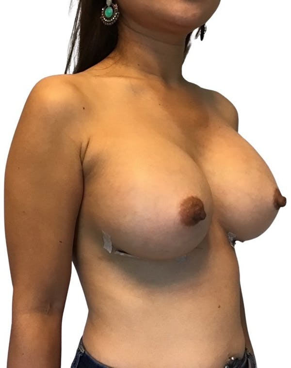 Breast Augmentation Gallery - Patient 13948299 - Image 4