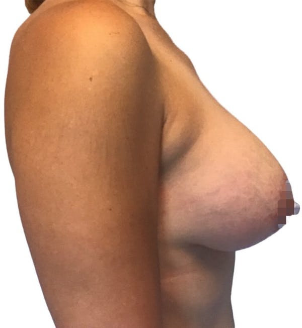 Breast Augmentation Gallery - Patient 13948298 - Image 4