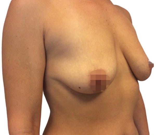 Breast Augmentation Gallery - Patient 13948298 - Image 5