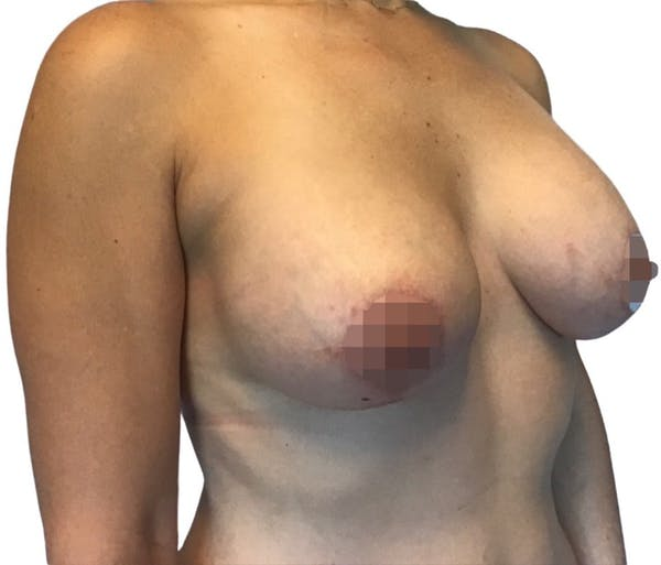 Breast Augmentation Gallery - Patient 13948298 - Image 6