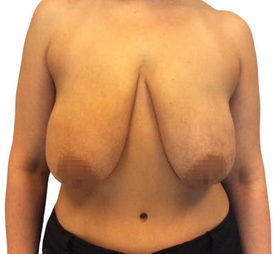 Breast Reduction Gallery - Patient 13948304 - Image 1