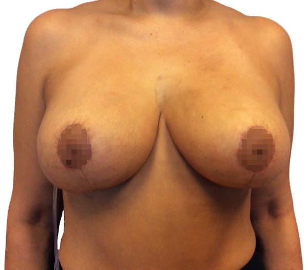 Breast Reduction Gallery - Patient 13948304 - Image 2
