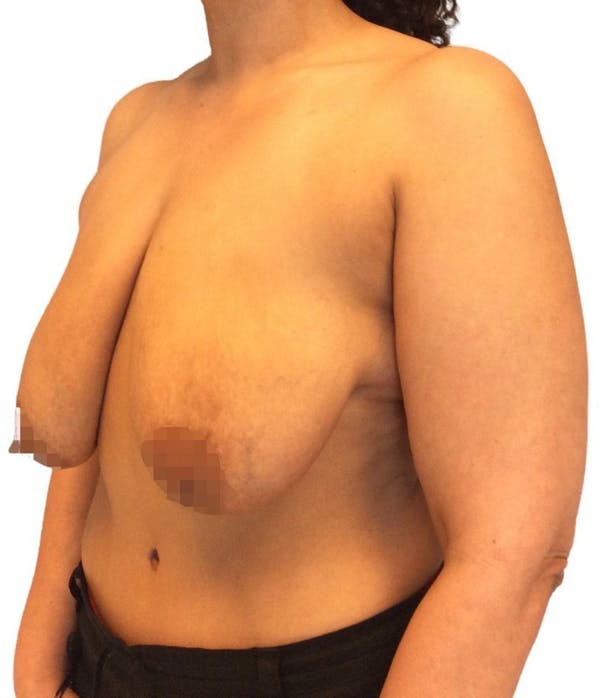 Breast Reduction Gallery - Patient 13948304 - Image 3