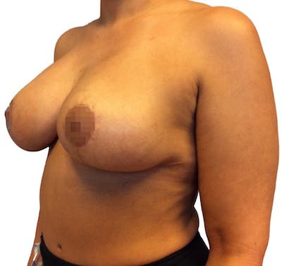 Breast Reduction Gallery - Patient 13948304 - Image 4