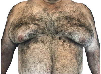 Male Breast Reduction Gallery - Patient 13948441 - Image 1
