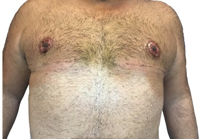 Male Breast Reduction Gallery - Patient 13948441 - Image 2