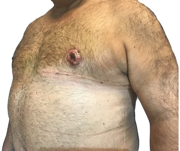 Male Breast Reduction Gallery - Patient 13948441 - Image 4