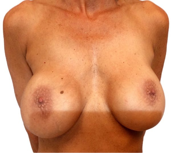 Breast Implant Revision with Dr. Anthony Admire in Scottsdale