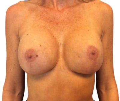 Breast Implant Revision Gallery - Patient 13948442 - Image 2