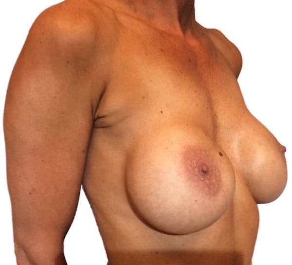 Breast Implant Revision Gallery - Patient 13948442 - Image 3
