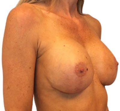 Breast Implant Revision Gallery - Patient 13948442 - Image 4