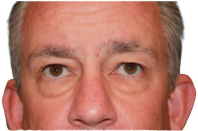 Blepharoplasty Gallery - Patient 13948446 - Image 1