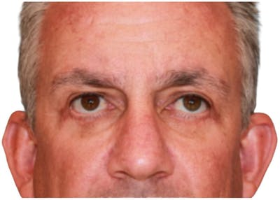 Blepharoplasty Gallery - Patient 13948446 - Image 2