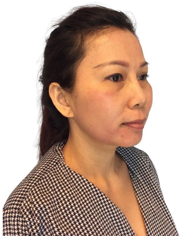 Chin Implant Gallery - Patient 13948448 - Image 3