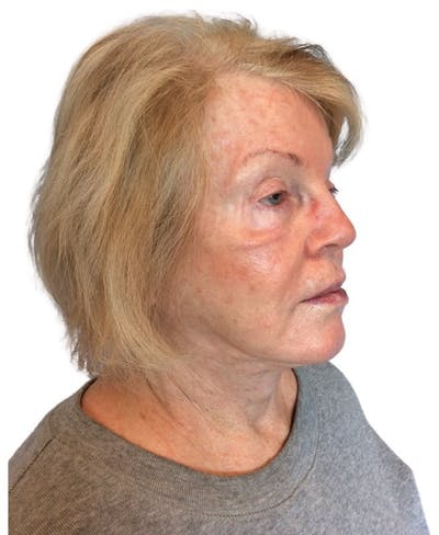 Facelift Gallery - Patient 13948524 - Image 1