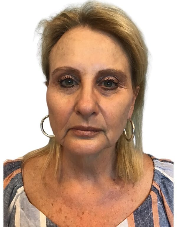 Facelift Gallery - Patient 13948526 - Image 1