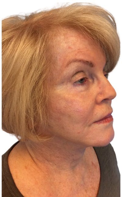 Facelift Gallery - Patient 13948524 - Image 2