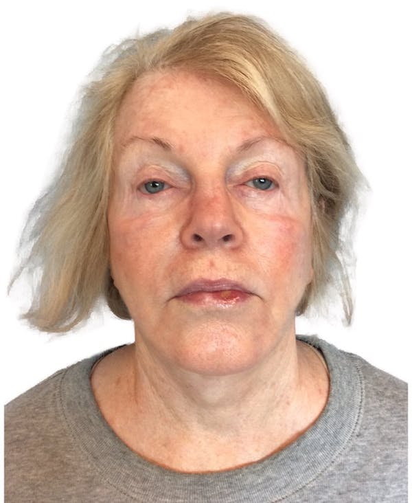 Facelift Gallery - Patient 13948524 - Image 3