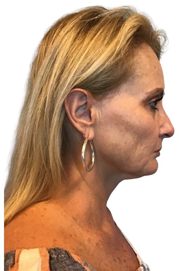 Facelift Gallery - Patient 13948526 - Image 3