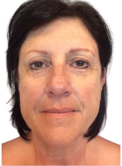 Facelift Gallery - Patient 13948529 - Image 1