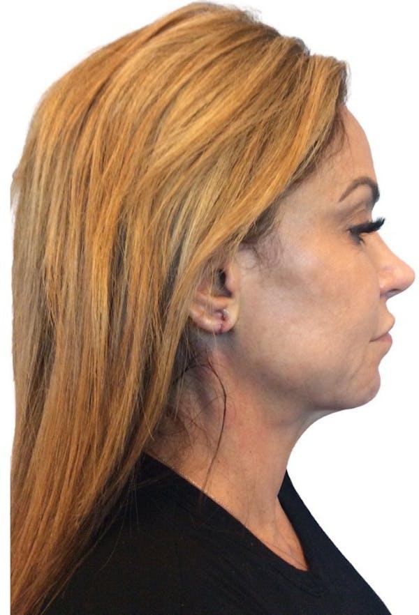 Facelift Gallery - Patient 13948525 - Image 5