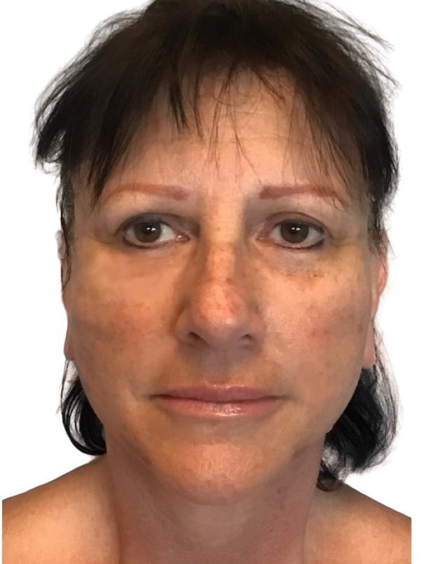 Facelift Gallery - Patient 13948529 - Image 2