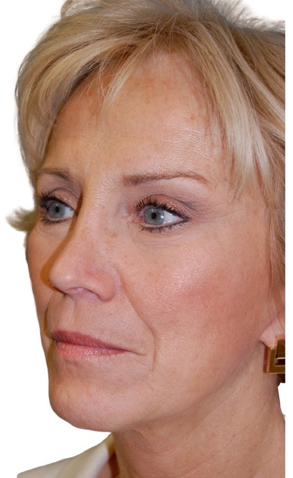 Facelift Gallery - Patient 13948528 - Image 3