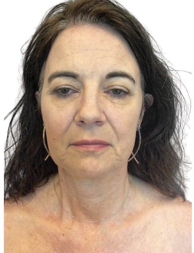 Facelift Gallery - Patient 13948530 - Image 1