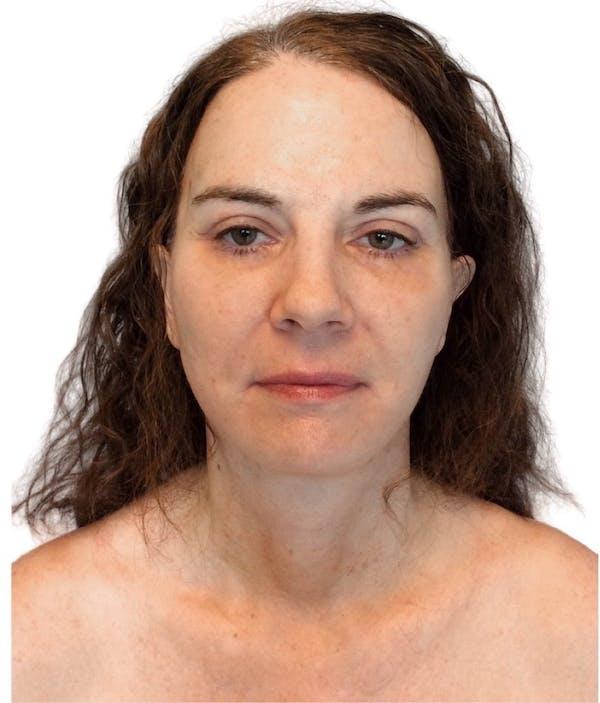 Facelift Gallery - Patient 13948530 - Image 2