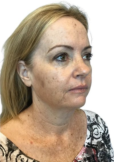 Facelift Gallery - Patient 13948531 - Image 1