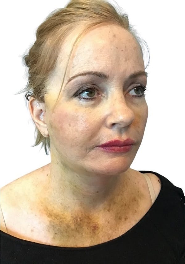 Facelift Gallery - Patient 13948531 - Image 2