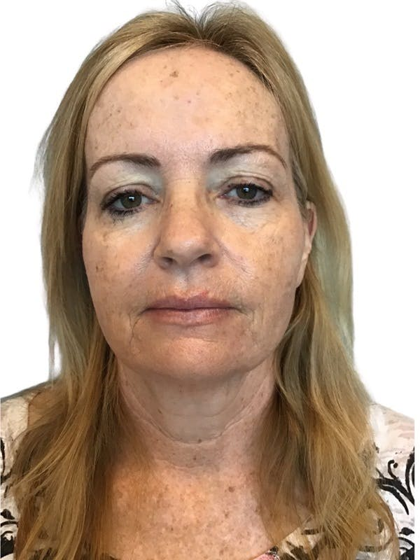 Facelift Gallery - Patient 13948531 - Image 3