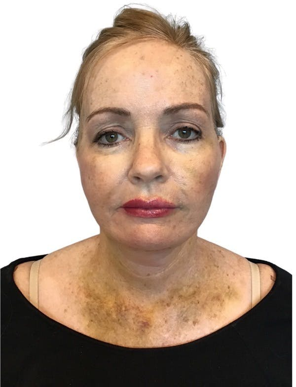 Facelift Gallery - Patient 13948531 - Image 4