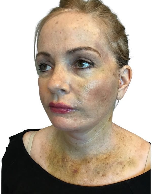 Facelift Gallery - Patient 13948531 - Image 6
