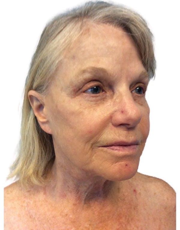 Facelift Gallery - Patient 13948534 - Image 1