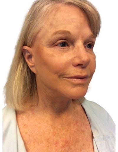 Facelift Gallery - Patient 13948534 - Image 2