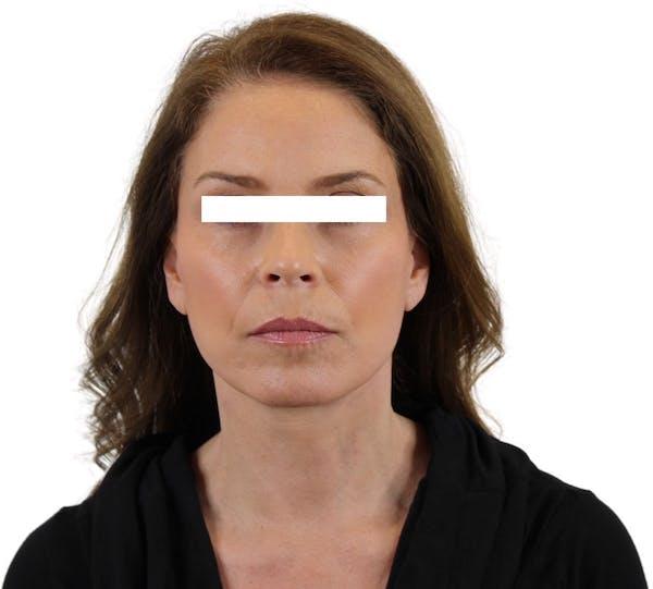 Facelift Gallery - Patient 13948536 - Image 1