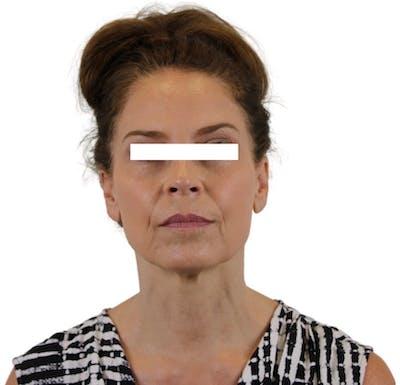 Facelift Gallery - Patient 13948536 - Image 2