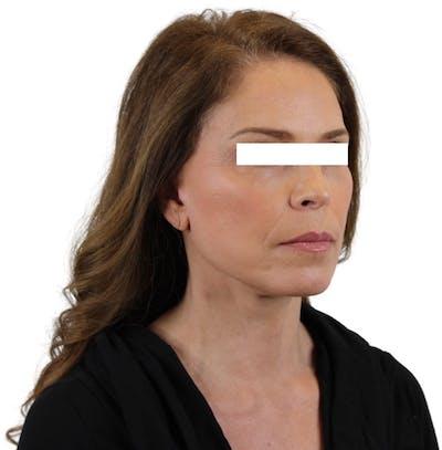 Facelift Gallery - Patient 13948536 - Image 3