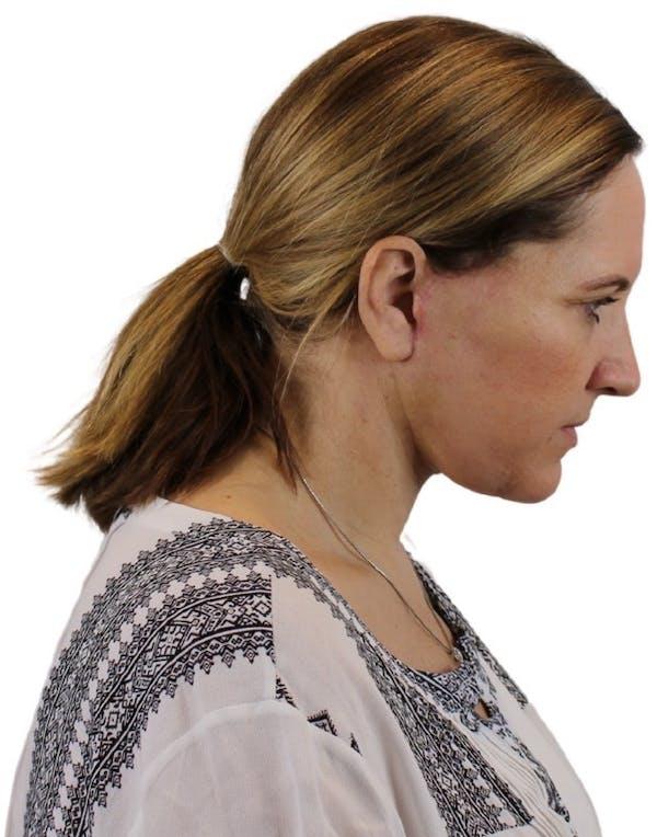 Facelift Gallery - Patient 13948535 - Image 4