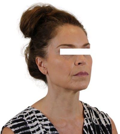 Facelift Gallery - Patient 13948536 - Image 4