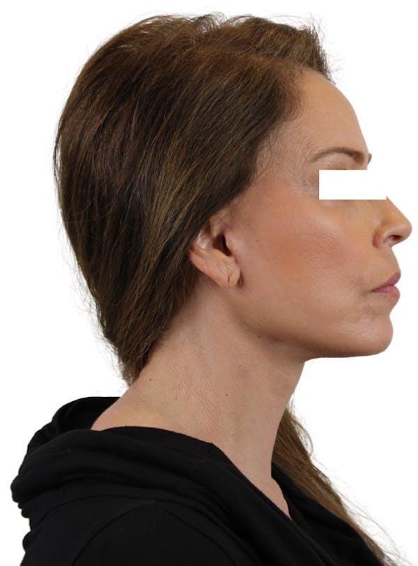 Facelift Gallery - Patient 13948536 - Image 5