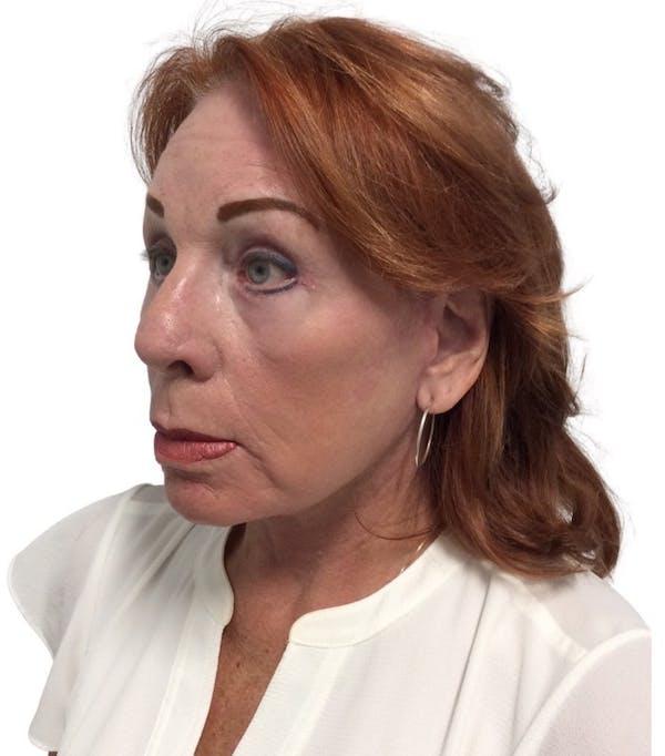 Facelift Gallery - Patient 13948537 - Image 4