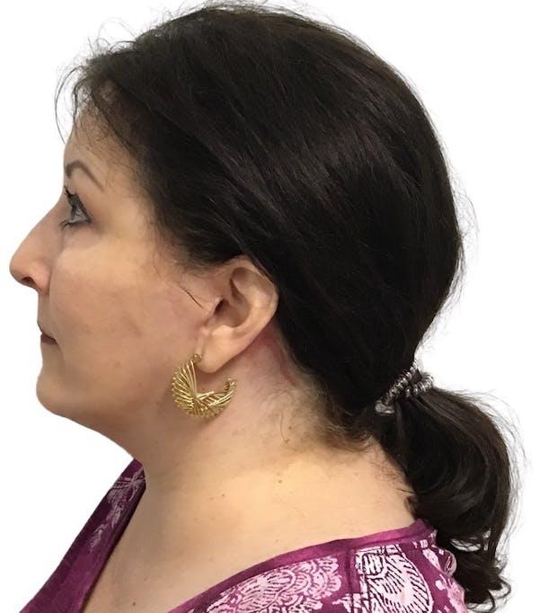 Facelift Gallery - Patient 13948538 - Image 4