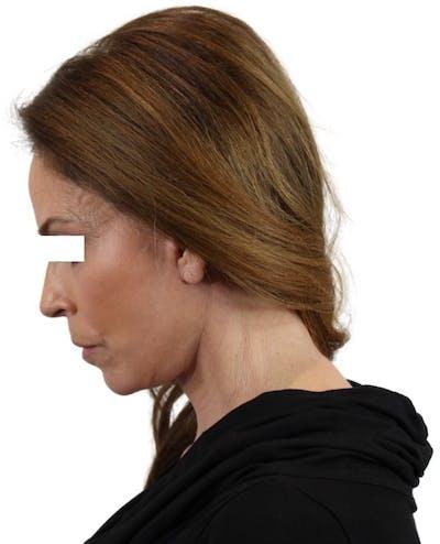 Facelift Gallery - Patient 13948536 - Image 7